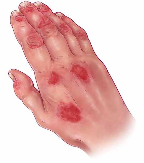 A Rash Of Evidence Evaluating Treating Psoriatic Arthritis The Rheumatologist