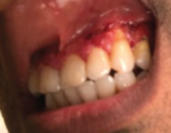 Figure 2. The patient presented with severe, painful, bleeding gingival hypertrophy.