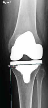 An anteroposterior X-ray of the left knee following the original arthroplasty. It shows a lateral femoral and tibial overhang of 4–5 mm and 3 mm, respectively.