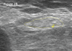 Right: The same view as 2A, with the common peroneal nerve outlined in yellow with a cross-sectional area of 21 mm2.