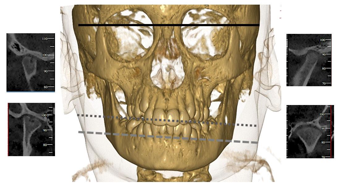 Jia The Temporomandibular Joint Diagnostic Challenges