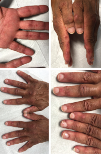 The initial physical examination was significant for a nonblanching, papular rash along the palmar aspects of the hands and digits, periungual erythema, and edema and tenderness of the proximal and distal interphalangeal joints of the hands.