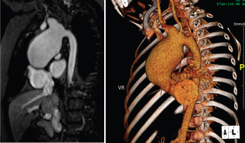 Large, aortic arch aneurysm as depicted by cMRI (left) and CTA (right). The aneurysm measured 4.4 x 4.9 cm at diagnosis and slowly grew over time, measuring 5.5 cm in diameter three years after diagnosis.