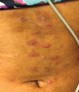 Hyperpigmented, maculopapular rash with overlying excoriation following rupture of prior pustules.