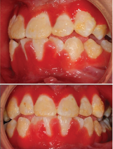 Hyperplastic, inflamed, erythematous and friable gingival lesions.