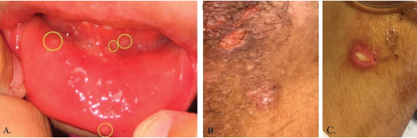 Pictures depicting oral ulcerations (A), genital ulceration (B) and cutaneous ulcer (C).