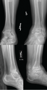 Figure 2: Comparison of X-rays