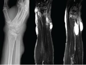 Figure 3: X-rays & MRI