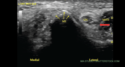 A transverse view of the ulnar groove in full elbow extension. The red arrow indicates the advancing edge of the MHTr.