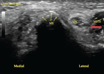 Figure 1. A transverse view of the ulnar groove in full elbow extension. The red arrow indicates the advancing edge of the MHTr.