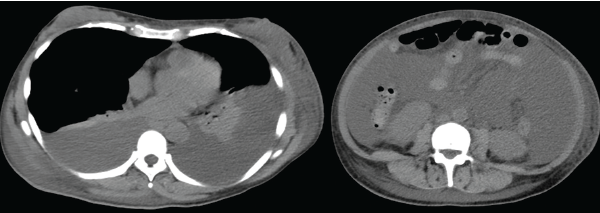 Figure 1: Computed tomography demonstrates bilateral pleural effusion and massive ascites.