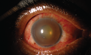 This external photograph of the right eye shows keratic precipitates on the corneal endothelium, corneal edema and hemorrhagic hypopyon in the setting of acute herpetic anterior uveitis.