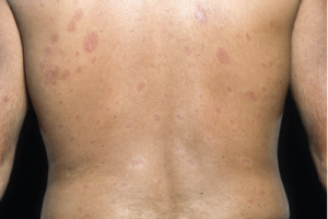 Plaques of thickened skin on the back of a patient with diffuse systemic sclerosis.