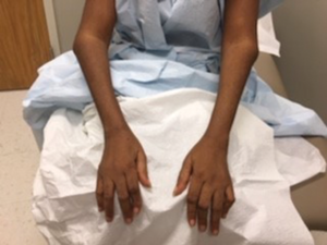 Flexion contractures of bilateral elbows, as well as Boutonniere and swan neck deformities of the fingers in a patient with 25 years of untreated seropositive rheumatoid arthritis