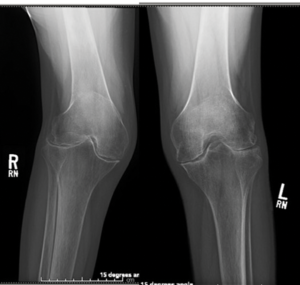 Bilateral symmetric joint space loss, erosions and periarticular osteopenia of the knee joints consistent with rheumatoid arthritis.