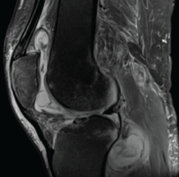 Magnetic resonance imaging of the patient's left knee shows joint effusion, synovial thickening, and periarticular muscle and soft tissue edema.