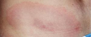 Erythema migrans rash in Lyme disease.
