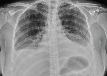 Figure 2: Radiograph of the Chest