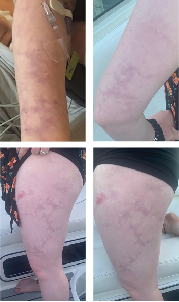 Livedo racemosa, a cutaneous finding characterized by a persistent, erythematous or violaceous discoloration of the skin, in a broken, branched, discontinuous and irregular pattern, is apparent on the patient's arms and legs.