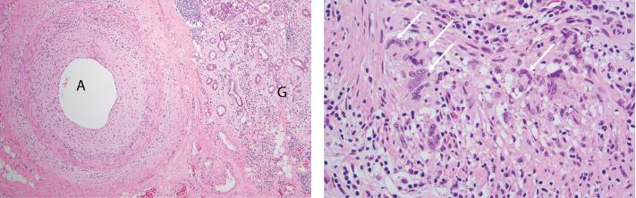 FigureS 1A (left) & 1B: Pathologic Findings of Submandibular Gland Resection