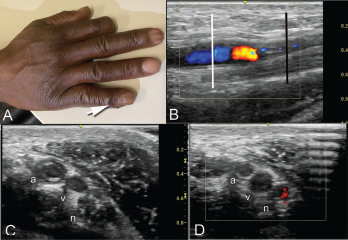 Clockwise from top: Image A shows the periungual ulceration (arrow) of the fifth digit, as well as the prior amputation of the second digit. Image B shows a longitudinal ultrasound of the palmar aspect of the ulnar right wrist. In the center of the image, the ulnar artery is in view and color Doppler flow is visualized within the vessel until there is a reversal of flow demonstrated by color change, followed by severe attenuation of flow distally. Distal to the cessation of flow, the vessel appears hypoechoic due to proliferation of the intima to the point of occluding the lumen. Image C shows a transverse view at the level of white line in Image B, with endothelial proliferation seen around a central lumen of the artery (a), next to the vein (v) and ulnar nerve (n). Image D, shows a transverse view at the level of the black line in Image B, where the arterial lumen (a) is occluded.