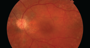 This image shows damage to the retina, which can be caused by HCQ.