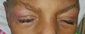 The patient presented with heliotrope rash.