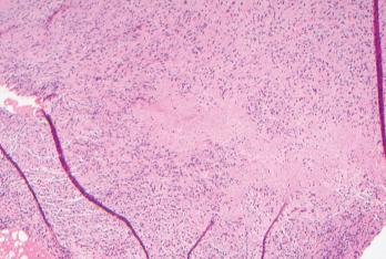 Biopsies of the small bowel mesenteric and serosal nodules demonstrated necrotizing granulomatous inflammation.