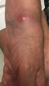 A lesion present on the patient's left wrist at a clinic appointment in September 2018.