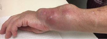 The patient's left wrist at a clinic appointment in October 2018.