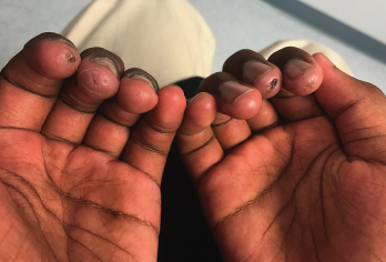 Figure 1: A 12-year-old Black male presented with digital ulcers and swelling.