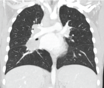 Figure 2: High-resolution computed tomography showed evidence of interstitial lung disease.