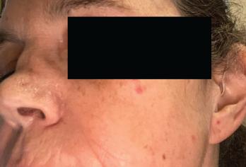 Destruction of the patient's nasal septum was evident.