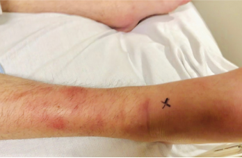 Figure 1: A lateral view of the right foot/ankle is shown with associated erythema and joint inflammation from the ankle to the forefoot. You can appreciate the associated swelling of the left medial ankle in the background, as well.