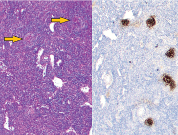Figure 1: Vague nodular areas (orange arrows) on the left and CD21 staining for follicular dendritic cells on the right demonstrate follicles with regressed germinal centers.