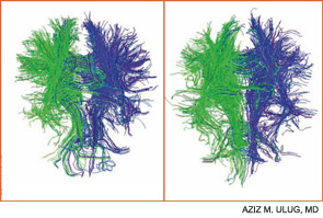 Figure 2A: DTI demonstrating white track connections in a normal brain (LEFT). Figure 2B: DTI in a brain from a patient with lupus.  The quantity of tracks is less than that in a normal person (RIGHT).