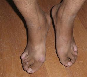 Tibetans with rheumatoid arthritis.