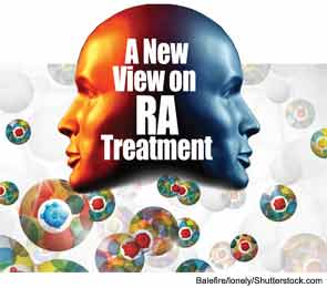 A New View on RA Treatment