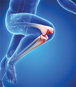 Image result for Osteoarthritis Therapeutics