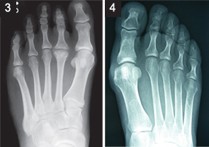 Podiatry For Rheumatologists Treating Patients Foot Complaints