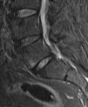 Sagittal STIR image from a lumbar spine MR, obtained two years prior to the current presentation.