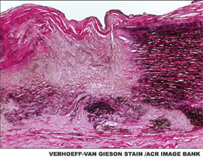 Giant Cell Arteritis Challenging to Diagnose, Manage