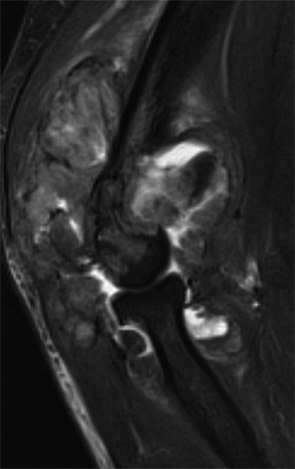 Figure 5: Right elbow sagittal T2-weighted fat-suppressed MR image