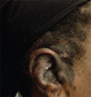 Figures 1a & 1b: Initial rash on ear (1a, below left) and forehead (1b, below right) consistent with discoid lupus erythematous.
