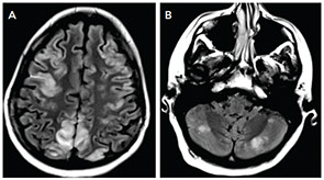 Figure 1: MRI FLAIR images show T2 hyperintensities affecting bilateral parietal and frontal regions (A) and the cerebellum (B).