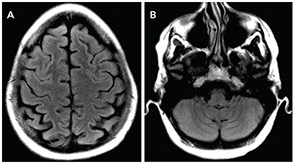 Figure 2: Repeat MRI FLAIR images acquired five weeks later show resolution of previously seen T2 hyperintensities in the parietal and frontal regions (A) and the cerebellum (B).
