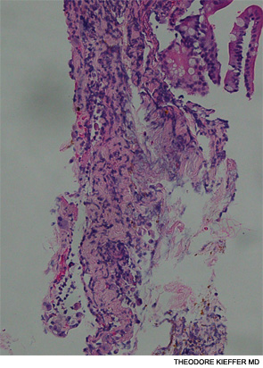 Biopsy of the jejunal ulcer seen on esophagogastroduodenoscopy.