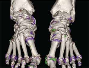 Three-dimensional volume-rendered image showing MSU crystal deposition (green) at sites throughout the feet, including the first metatarsophalangeal joints and midfeet in a patient with gout