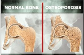 Persistent Symptomatic Hypocalcemia Due to Denosumab