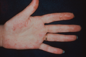 Patients with antiphospholipid syndrome often suffer from vascular lesions.